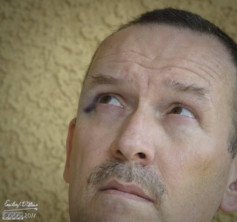 The onset of the black eye