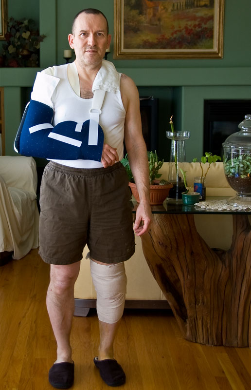 The day after knee and shoulder surgery - one of the most unflattering pictures of me.